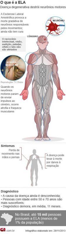 esclerose
