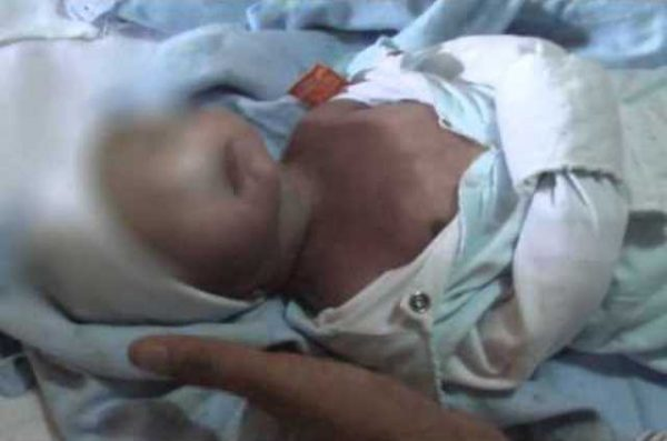 morte de bebe ok